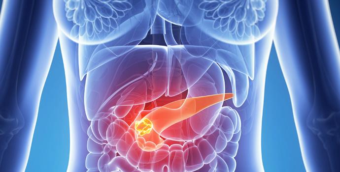 Cancer Du Pancréas Causes Et Prévention