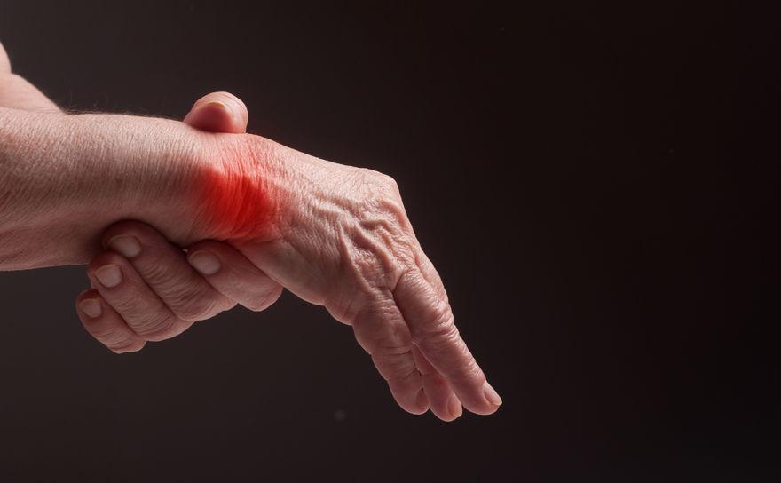 Rhumatismes, Ostéoporose